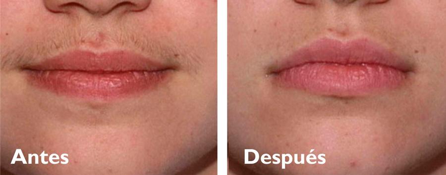 bigote-a-yd