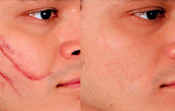 Remoción de Cicatrices