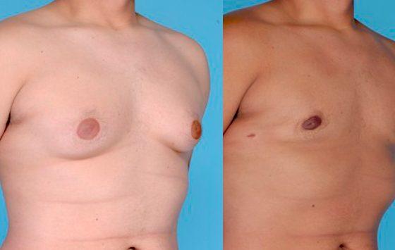 Ginecomastia (Reducción mamaria en el hombre)