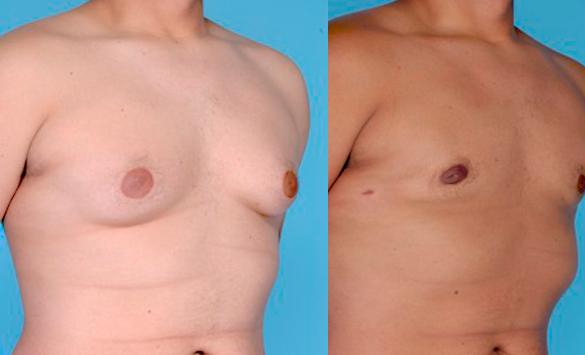 operación ginecomastia en hombres