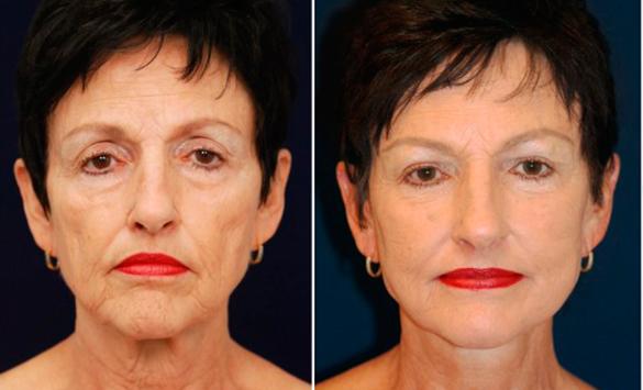 Rejuvenecimiento Facial Peeling