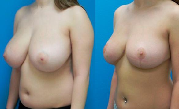 Reducción mamaria pechos