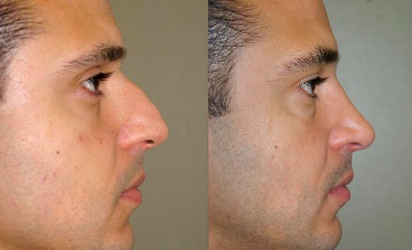 Rinoplastia Cirugía Hombres