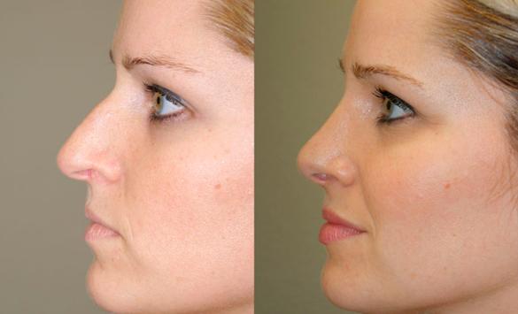 Rinoplastia Cirugía Mujeres