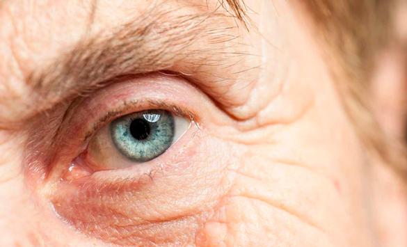 blefaroplastia operación de ojos